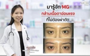 กล้ามเนื้อตาอ่อนแรงที่ไม่ต้องผ่าตัด (MG)